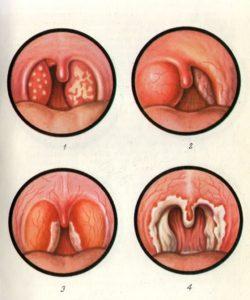 Дифтерия - лечение народными средствами