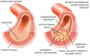 Роль капилляров