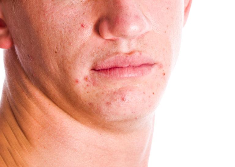 Прыщи при пищевой аллергии на лице